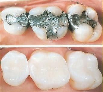 Tooth Colored Filling Vs. Metal Filling